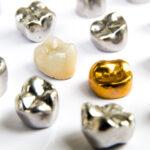 Metall aus Zähnen